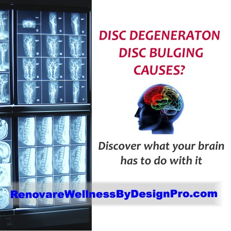 WBD Low Back Pain Disc Degeneration Brain Mapping Brain Balancing Chronic Pain Fibromyalgia Neurofeedback Chronic Fatigue Syndrome E1431079060406